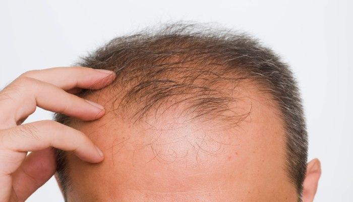 Cara Mengatasi Kebotakan Rambut Tanpa Obat