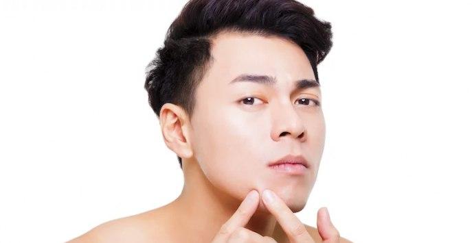 Read more about the article Cara Mudah Mengatasi Jerawat Bila Tahu Penyebabnya